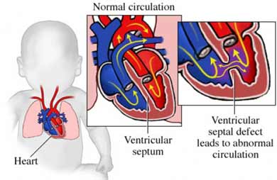 Defecto en el ventr&iacute;culo septal