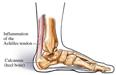 Achilles Tendonitis