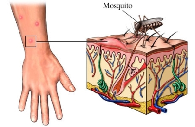 Mosquito bite