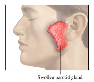Inflamación de la glándula parótida