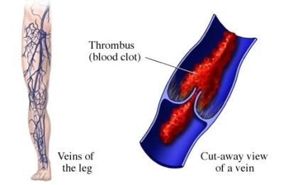 si55551333 96472 1 thrombophlebitis.jpg