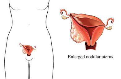 C&aacute;ncer uterino