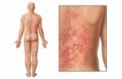Sarpullido corporal con manchas (adulto)