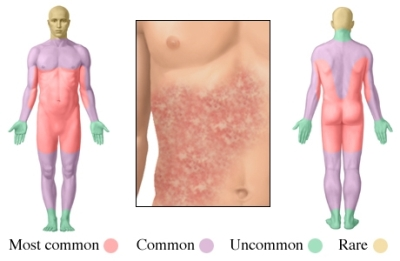 Urticaria por medicamentos