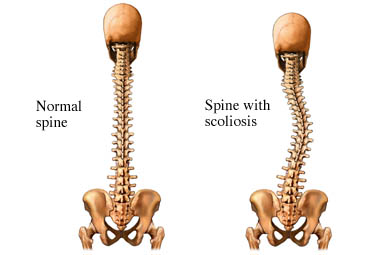 Escoliosis