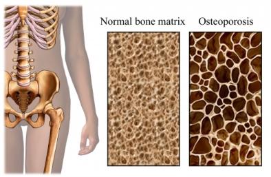 hueso con osteoporosis