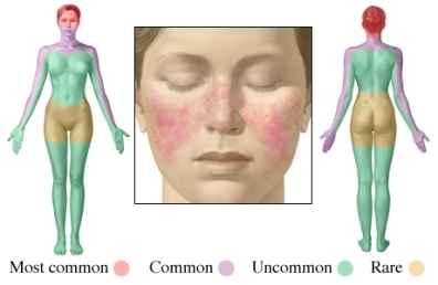 Lupus rash
