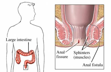 Anal fissure and fistula
