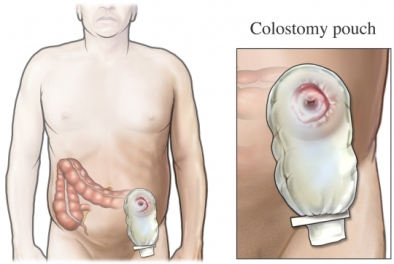 bolsa de colostom&iacute;a