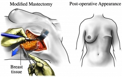 mastectoma