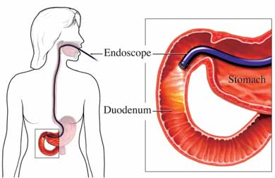 Endoscop&iacute;a