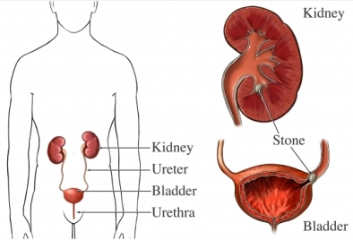 clculo renal y sistema urinario