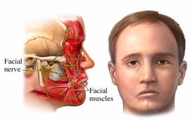 Facial droop and nerves