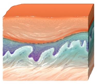 corte transversal de las capas de la piel