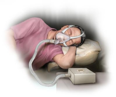 Control de la apnea del sueño