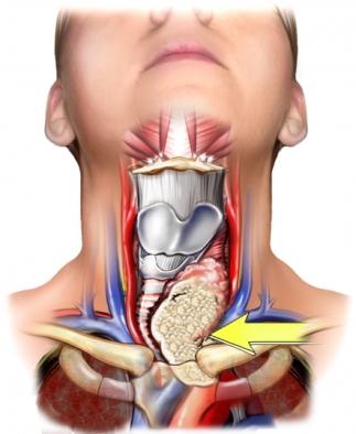 Tumor tiroideo