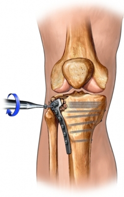 Tibia repair