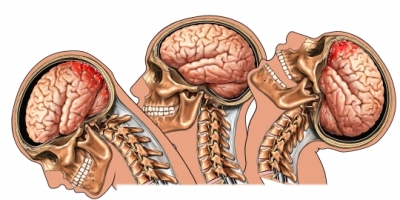 Trauma cerebral por latigazo cervical