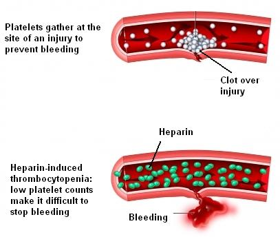 Heparin blood clot