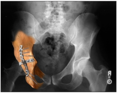 repiared pelvis x-ray
