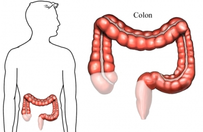 si2000 105433 1 colon