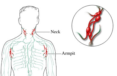 Swollen Lymph Nodes