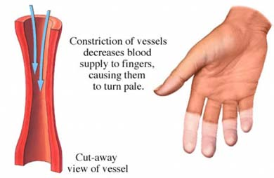 Low blood flwo to fingers, vasoconstriction