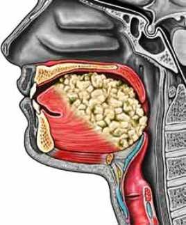 tongue cancer